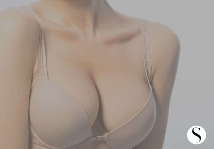 5 Things You Should Know Before Your Augmentation Procedure